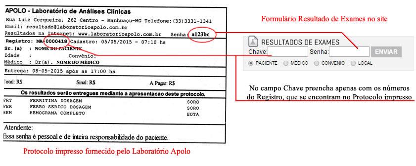 duvida-resultado-exames